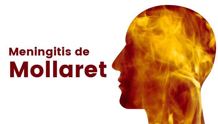 meningitis de Mollaret