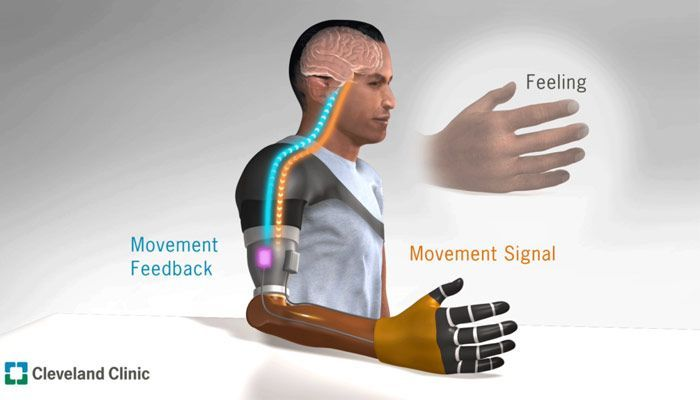 prótesis de brazo basadas en interfaces neuronales