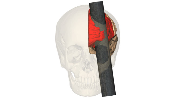caso Phineas Gage
