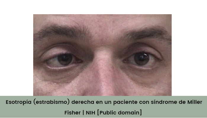 sindrome de miller fisher